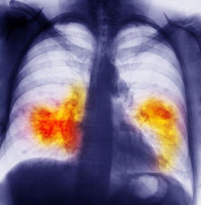 Si tienes alguna de estas enfermedades, estos ejercicios pueden ayudarte...