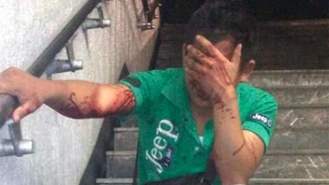 Mujer golpea a su abusador en estación de metro