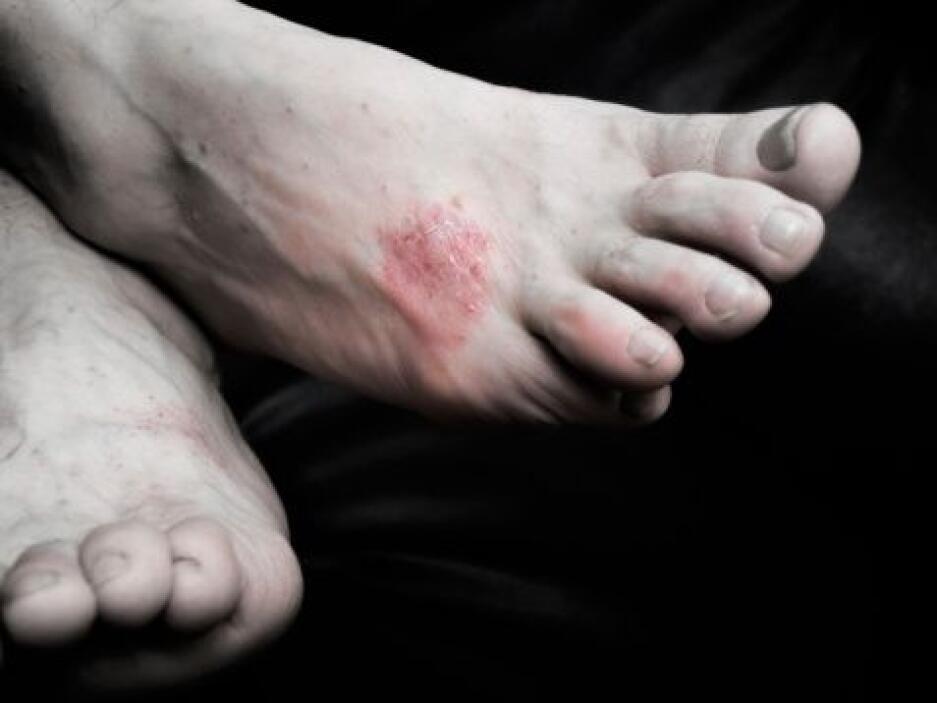 Malformaciones en los pies, sobretodo en la parte interna, dedo gordo y...