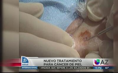 Nuevo tratamiento para cáncer de piel