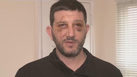 Veterano que fue atacado en El Bronx dice que donará eventual compensaci...