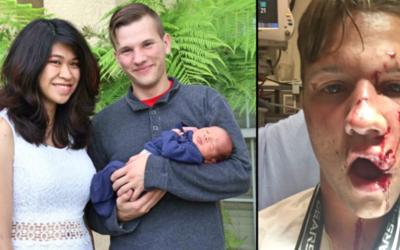 Ian Alli, de 20 años, fue atacado por un pitbull.