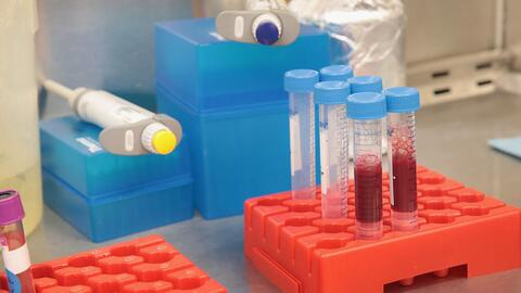 El VIH llegó a EEUU mucho antes del paciente cero
