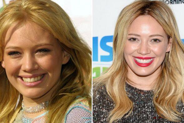 Mucha gente opina que tiene una dentadura que les recuerda a los dientes...