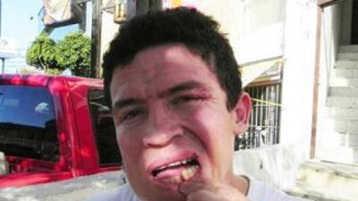Ulises Solís muestra las heridad que le causó el 'Canelo' (Foto cortesía...