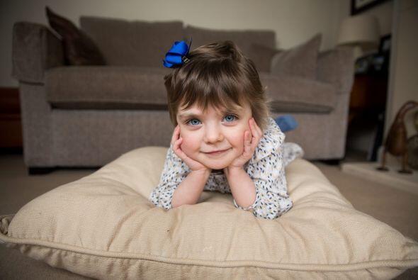 Los doctores describieron el caso de Isobel como algo milagroso.