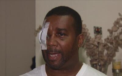 Un hombre pierde uno de sus ojos tras ser atacado con un bate en El Bronx