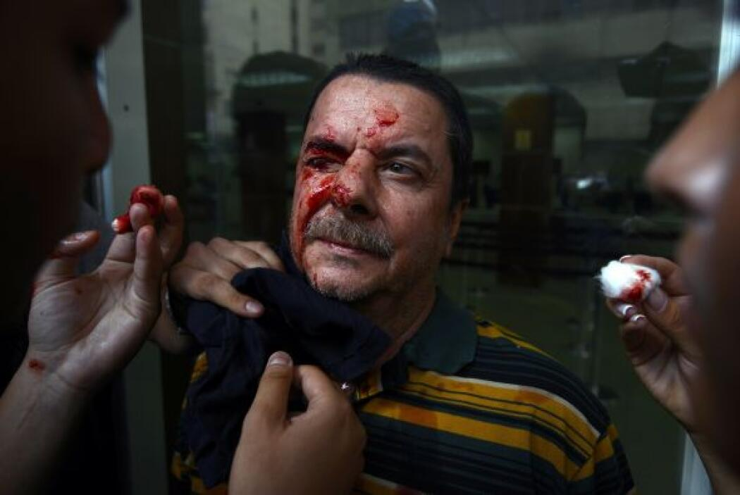 Durante las protestas del 12 de febrero decenas de civiles fueron herido...