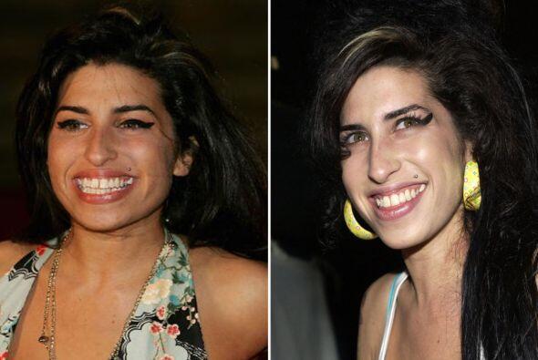 Sin embargo sí pudimos notarle algunos ligeros cambios en sus dientes de...