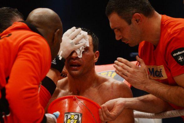La Klitschko trabajó en su pómulo algo golpeado.