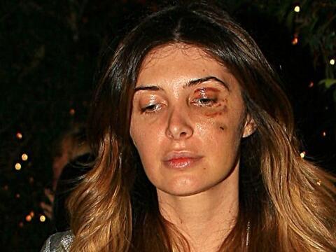 La modelo Brittny Gastineau, ex novia de Luis Miguel, recibió tre...