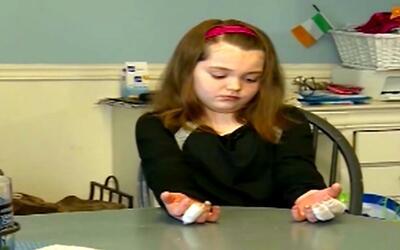 Alertan por quemadura de niña tras el uso bórax para hacer masa elástica