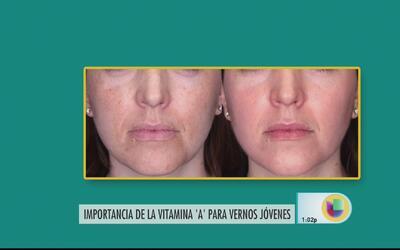 La vitamina A es un aliado para lucir más joven