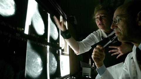 En 'Vida Sana con Cecilia' te decimos cómo prevenir el cáncer de seno