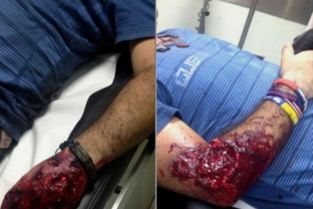 Corrió la sangre en las calles de Venezuela 31775a1b754b441bb35ce791dcce...