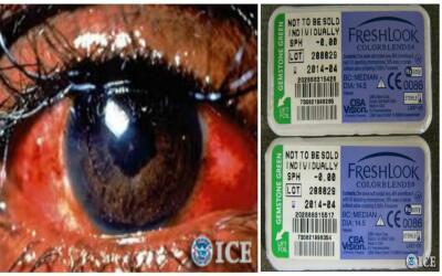 Precaución con lentes de contactos falsos en Halloween