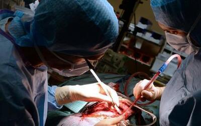 Consulta con Dr. Juan: cuidado con las cirugías