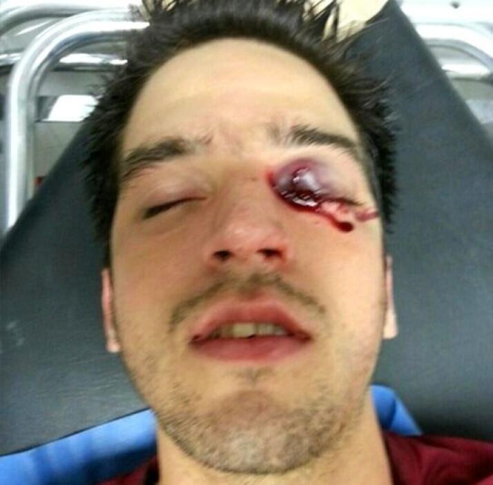 Un joven luce un impacto en el párpado de su ojo izquierdo.