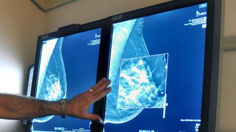 Foto de archivo muestra los resultados de una mamografía.