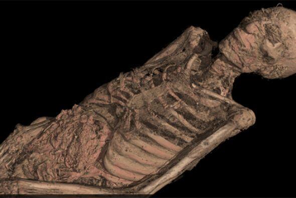 Los investigadores también observaron los músculos e incluso las arteria...