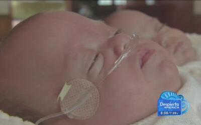 Gemelitos nacieron con una diferencia de 39 días