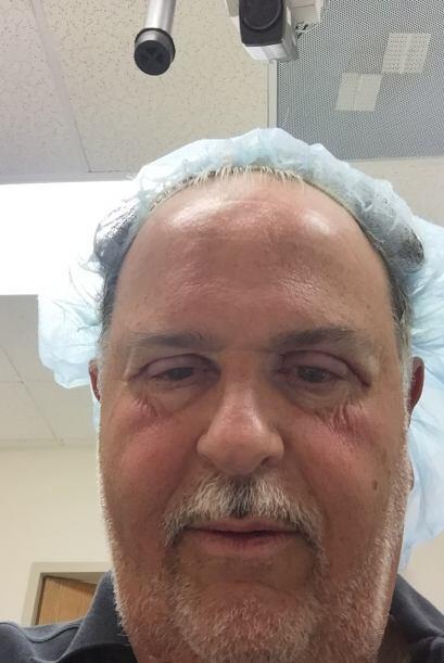 La cirugía duró poco más de una hora y sólo se requirió anestesia local.