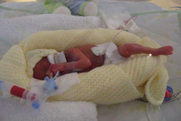 Emily entró en labor de parto con solo cinco meses de embarazo y...