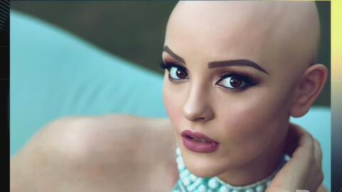 A esta joven el cáncer no la aparto de su sueño de ser modelo