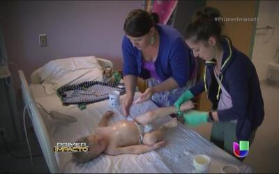 Terapia alternativa para resolver infecciones de la piel en niños pequeños