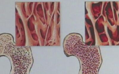 Cada 20 de octubre se conmemora el Día Mundial contra la Osteoporosis