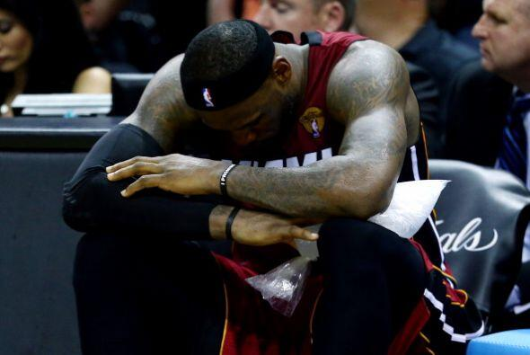 James sufrió lo que parece un tirón en su pierna izquierda...