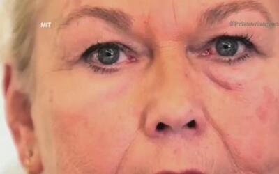 Tratamiento ofrece quitar las bolsas de los ojos sin cirugía