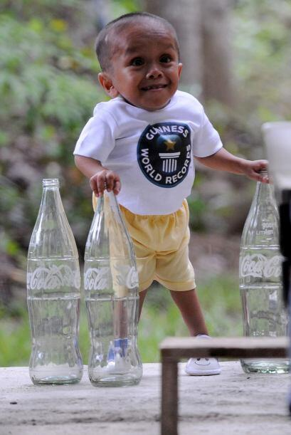 El padre de Balawing contó que éste fue un bebé con muchos problemas de...