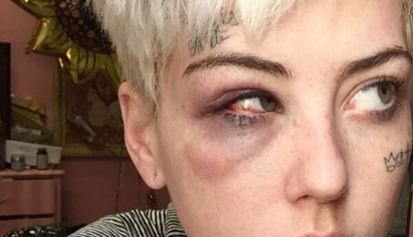 Illma Gore muestra cómo le quedó el ojo morado tras ser atacada en la calle