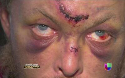 Un hombre fue desfigurado durante un arresto