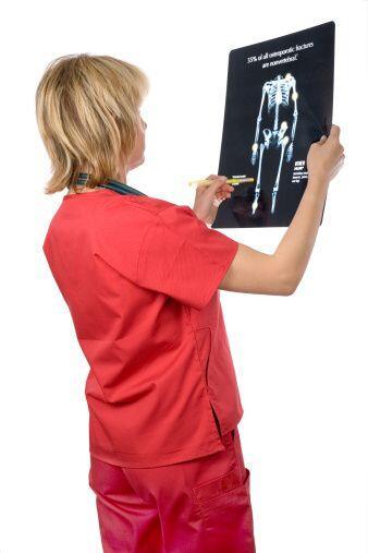 ¿Qué es osteoporosis?- La osteoporosis es una enfermedad en la que los h...