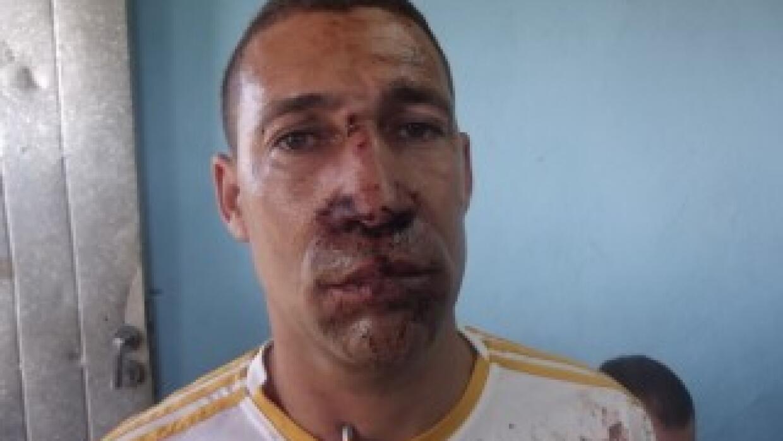 Yriade Hernández Aguilera fuertemente golpeado.