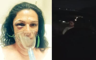 El momento de la agresión a la senadora Ana Gabriela Guevara