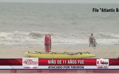 Niño de 11 años fue atacado por tiburón