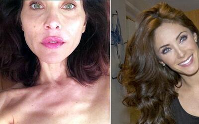 Lorena Meritano mostró sus senos mutilados y Anahí podría estar embarazada