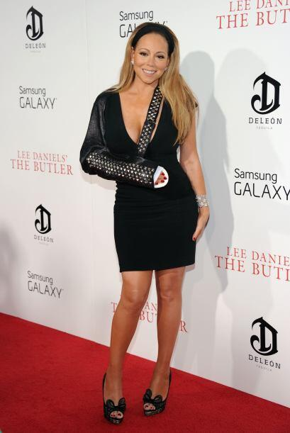 Y la pobre Mariah Carey mostró su hombro lastimado. Mira aqu&iacu...