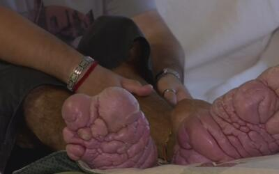 Masa deforme que crecía en su pie lo llevó a tomar medidas extremas