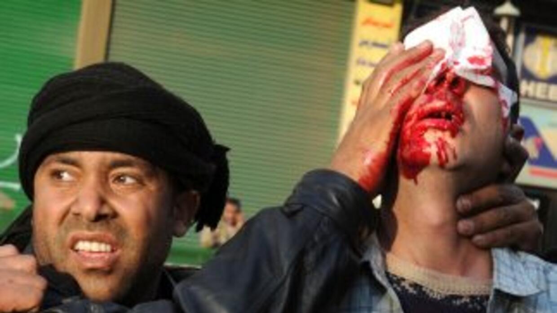 La cifra de muertos y heridos es incierta. Reportes de prensa indican qu...