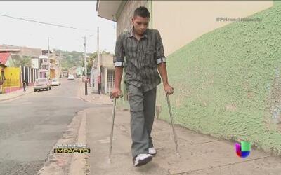 Noel recibió prótesis gracias a su historia en Primer Impacto