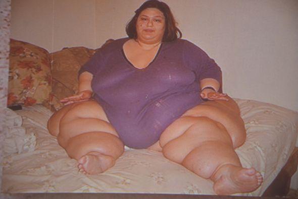 Mayra subió de peso porque tuvo una enfermedad de las tiroides que lo qu...
