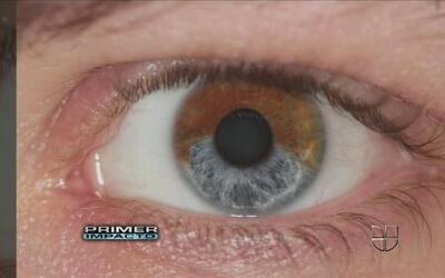 Nueva tecnología para cambiar el color de tus ojos