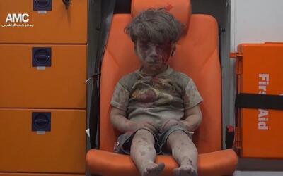 El niño de Alepo que muestra la cara del horror por la guerra en Siria