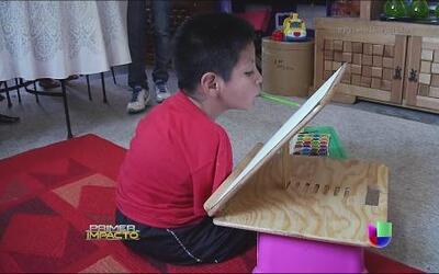 Pese a haber nacido sin extremidades un niño demuestra que todo es posible