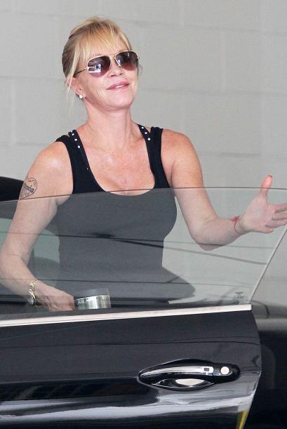 Mucho se rumoró que la actriz se sometió a un tratamiento láser para bor...