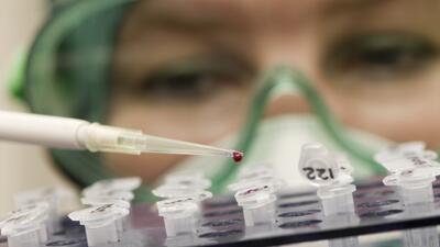 salud laboratorio cancer